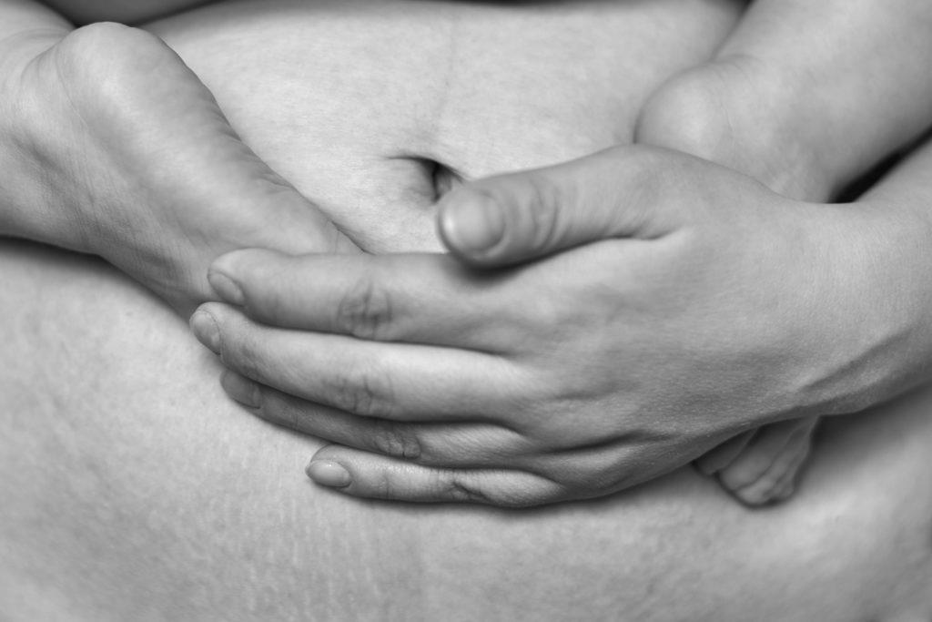 Stress Urinary Incontinence and Diastasis Recti