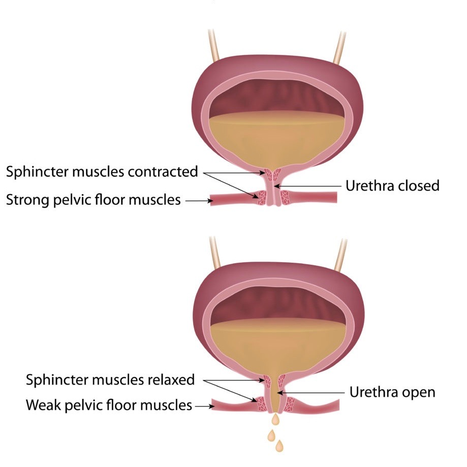 Postpartum Urinary Incontinence: Stress Incontinence Diagram Every Mother