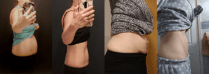 Diastasis Recti 101: What is Diastasis Recti? Diastasis Recti Before and After.